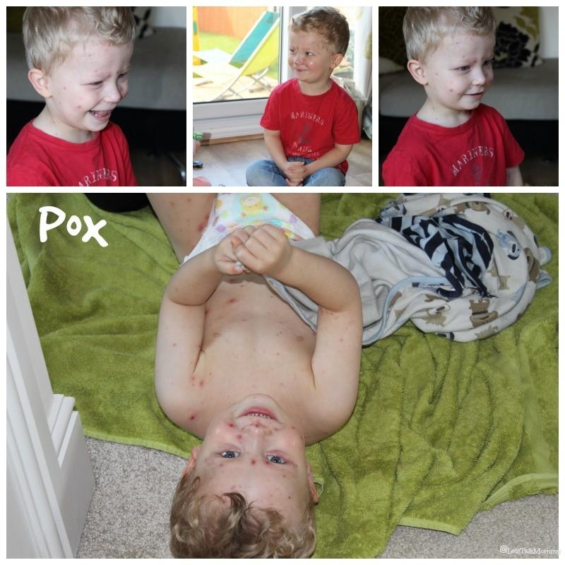 Pox & Poxy